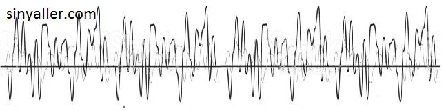 Sinyaller elektronik
